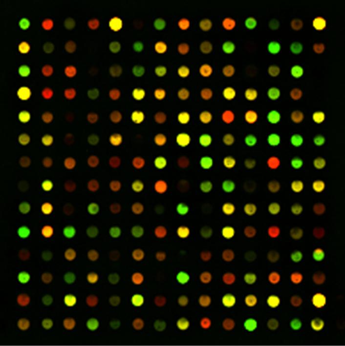 Bioinformatics Projects
